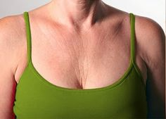 Prevent Neck & Chest Wrinkles - Sure shot tips | Online bee