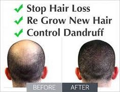 Hair loss  - Tbuy.in