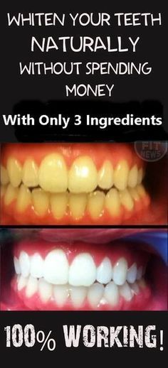 Tips For Her: Whiten Your Teeth Naturally Without Spending Money...