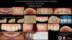 AIOP INTERNATIONAL PROSTHODONTIC CONTEST: The prosthesis and the face. powered by AIOP & Zerodonto with collaboration of Dr. Mauro Fradeani as President of the Jury.   Case report by Jon Gurrea. Bilbao, Spain.