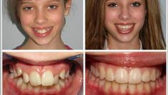 At Mashouf Orthodontics, we believe that everyone deserves a good smile . Smile Dental, Smile Teeth, Dental Care, Braces Before And After, After Braces, Teeth Braces Cost, Braces Retainer, Types Of Braces, Misaligned Teeth