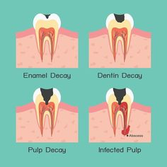 Cheap dentist tooth implant options,dental association how to prevent plaque on teeth,severe toothache pain remedies homeopathic remedy for bad breath. Teeth Health, Oral Health, Dental Health, Healthy Teeth, Teeth Implants, Dental Implants, Dental Hygiene, Dental Care, Dental Assistant