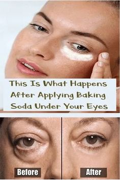 This Is What Happens After Applying Baking Soda Under Your Eyes - Healthy Beauty Ways Beauty Care, Beauty Skin, Beauty Hacks, Beauty Guide, Diy Beauty, Beauty Ideas, Beauty Secrets, Face Beauty, Homemade Beauty