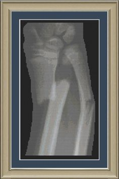 X-ray of fractured forearm: anatomy cross-stitch pattern. $3.00, via Etsy.