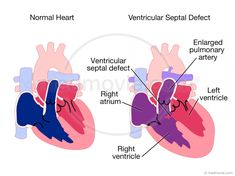 Transposition of the Great Arteries Heart Palpitations Causes, Ventricular Septal Defect, Congenital Heart Defect, Normal Heart, Pediatrics, How To Stay Healthy, Biology, Cardio, Science