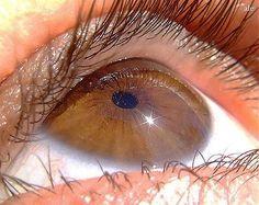 Народные средства при ослаблении зрения. | Здоровье | Постила