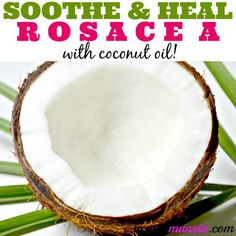 Soothe and heal with this natural rosacea coconut oil treatment! Using coconut oil for rosacea drastically reduces most of the symptoms like inflammation pain itchiness redness pus-filled bumps dryness and sensitive skin! Coconut Oil Facial, Coconut Oil For Acne, Coconut Oil Uses, Benefits Of Coconut Oil, Organic Coconut Oil, Oil Benefits, Rosacea Symptoms, Acne Rosacea, Rosacea Remedies