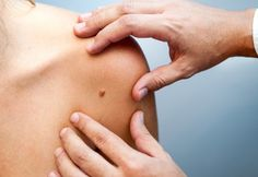 $99 for a Full Body Skin Cancer & Melanoma Check incl. Mole Mapping using Foto Finder