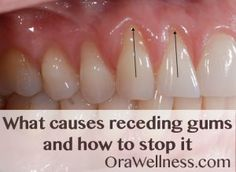 Natural Teeth Whitening Remedies Holistic answers to the questions about receding gums. Gum Health, Teeth Health, Healthy Teeth, Dental Health, Dental Care, Oral Health, Dental Hygienist, Health Facts, Healthy Habits