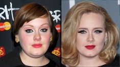 Adele Bad Celebrity Plastic Surgery, Plastic Surgery Photos, Celebrity Surgery, Worst Celebrities, Celebs, Aveeno Daily Moisturizing Lotion, Adele Weight, Celebrities Before And After, Cosmetic Procedures