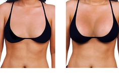 Do you have wish to re size your breast or fat transfer breast augmentation or looking for regain your original volume of has been losed after weight reduction? Dr. Raj one of the best doctors available in Chennai for best breast surgery in Chennai. Book your appointment with us gain more benefits.