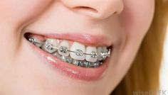 There are so many signs that you can look out for to check if you require braces. Early loss of baby teeth, difficulty in biting, blocked out teeth, too much space between teeth, jaw shift and makes sound to show that you need braces. The above mentioned points will give you a rough idea to determine if you need braces.