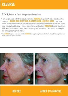 Try the Rodan+Fields Reverse regimen for sun-damaged skin..new and improved from the Dr's of Proactiv with a 60 day guarantee. Order yours and get 10%off and free shipping at rebeccahodge.myrandf.com
