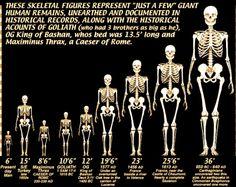 giant-skeletons-chart