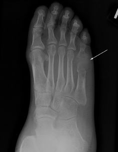 Gout - arthritis with increased uric acid. Unfortunately my husband has this Orthotics And Prosthetics, Radiologic Technology, Radiology Imaging, Rad Tech, Bone Diseases, Medical Anatomy, Uric Acid, Bone And Joint, Chiropractic Care