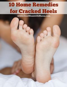 10 Home Remedies for Cracked Heels #naturalremedies #homemade - DontMesswithMama.com
