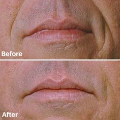 Restore youth back into your life with Restylane. It tackles age-related volume loss with natural results.