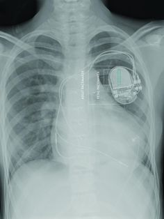 World's first fully implantable micropacemaker designed for use in a fetus