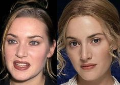 Kate Winslet before and after nose correction plastic surgery Nose Plastic Surgery, Plastic Surgery Photos, Nose Surgery, Kate Winslet, Natalie Portman, Celebrity Plastic Surgery, Celebrities Before And After, Photoshop, Liposuction