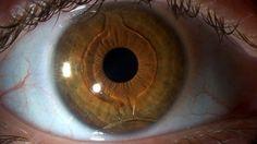 ¿Sabes qué es un Lente Intraocular? Infórmate en la siguiente liga:   http://www.oftavision.com.mx/que-es-un-lente-intraocular/