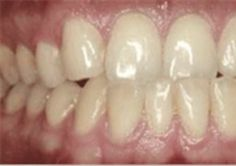 At South Bay Smiles, we offer InvisAlign braces treatment for our patients. See before and after InvisAlign photos and call us today at 310.670.0659!