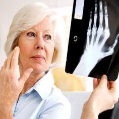 VITAMINS FOR WOMEN WITH RHEUMATOID ARTHRITIS