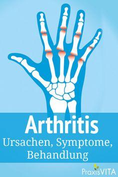 Unter einer Arthritis versteht man verschiedene entzündliche Gelenkerkrankungen mit unterschiedlichen Ursachen. Praxisvita erklärt, welche Formen von Arthritis es gibt und was dagegen hilft.