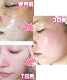 Face Care, Skin Care, Beauty Skin, Hair Beauty, Crochet Dolls Free Patterns, Eyelash Growth, Glowing Skin, Eyelashes, Facial