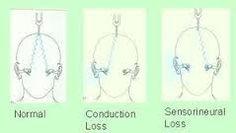 Image result for weber test and rinne test interpretation