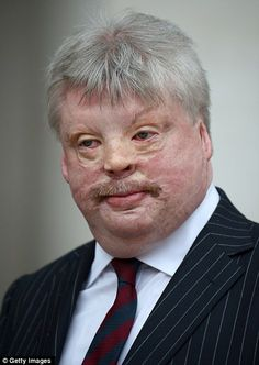 Simon Weston attends the Ceremonial funeral of former British Prime Minister Baroness Thatcher at St Pauls Cathedral