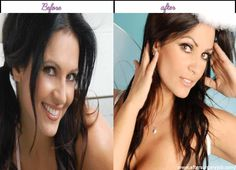 Plastic Surgery Pics of Denise Mi - http://www.aftersurgeryjob.com/plastic-surgery-denise/