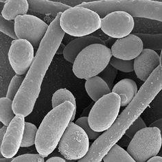 El Cáncer es un hongo y es curable :(bicarbonato de sodio, Agua de Mar o Fruta biológica …)