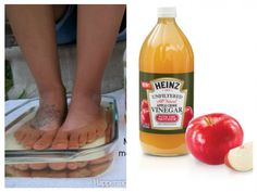Many people have heard about the surprising benefits of Apple Cider Vinegar. But, you may be surprised, because of the different uses of Apple Cider Vinegar, for example, in remedying both health a… Apple Benefits, Health Benefits, Health Tips, Apple Cider Vinegar Remedies, Stop Eating, Natural Cures, Natural Healing, The Cure, Fruit