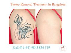 Tattoo Removal Clinic - Sofiyacare is one of the best laser tattoo removal clinics in Bangalore, India. We provide Painless and Permanent Tattoo Removal Treatment at affordable costs!  http://www.sofiyacare.com/Services/tattoo-removal-in-bangalore.html