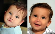 Operation Smile: Because Every Child Deserves a Beautiful Smile 23 Marketing Inc. Charitable Giving, Charitable Donations, Charity Quotes, Cleft Lip, After Surgery, Smile Because, Children In Need, Beautiful Smile, Campaign Ideas