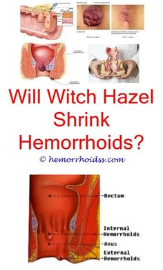 How To Shrink Hemorrhoids How To Shrink Hemorrhoids Fast ...
