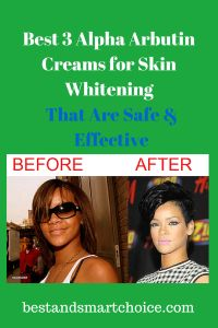 """Are you looking for a good and safe skin whitening cream? Check out """"Best 3 Alpha Arbutin Creams for Skin Lightening That Are Safe and Effective"""" Click here --> http://bestandsmartchoice.com/2014/07/top-rated-alpha-arbutin-creams-skin-lightening/"""