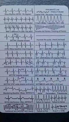 EKG Heart Rhythms Cheat Sheet The ultimate guide to EKG (ECG) interpretation for nurses. Most Nurses Have to Interpret EKG Rhythms Every Day. Our FREE Cheat Sheet Will Make Recognizing the Difference Second Nature. Nclex, Nursing Articles, Nursing Tips, Nursing Cheat Sheet, Nursing Programs, Rn Programs, Certificate Programs, Nursing School Notes, Nursing Schools