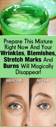 Prepare This Mixture Right Now And Your Wrinkles, Blemishes, Stretch Marks And Burns Will Magically Disappear! Prepare This Mixture Right Now And Your Wrinkles, Blemishes, Stretch Marks And Burns Will Magically Disappear! Beauty Care, Diy Beauty, Beauty Skin, Health And Beauty, Face Beauty, Oil For Stretch Marks, Tips Belleza, Aloe Vera Gel, Belleza Natural