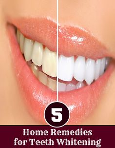 Top Five Home Remedies for Teeth Whitening