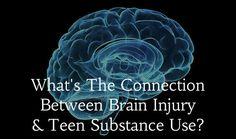 Connection Between Brain Injury & Teen Substance Use - TeenDrugRehabs