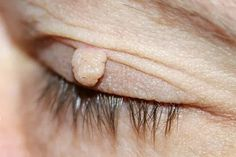 We know different types of warts and treatments. Choose the best method for your wart type and get rid of warts on your skin. Skin Tags On Face, Skin Tag On Eyelid, Skin Tags Home Remedies, Skin Moles, Skin Care Masks, Best Anti Aging Creams, Skin Tag Removal, Warts, Skin Problems
