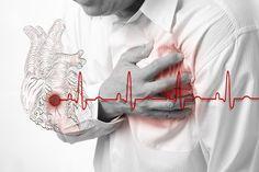 Hallan explicación al infarto en personas sin factores de riesgo (estudio)