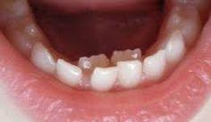 teeth.jpg (261×152)