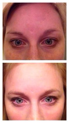 One of our consultants, Jennifer - she used REVERSE for 8 weeks and this was her result. Want to know how to get your own before and after? Contact me. Let's get started! www.fjohnson.myrandf.com