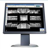 Our practice is very pleased to provide digital imaging. With this technology, we take an X-ray of your mouth with a digital sensor and download into our computer, where it is immediately available. We can also view your entire mouth in one shot, including the upper and lower jaws, with panoramic digital images. These methods result in 75% less radiation than conventional X-rays. No more waiting for images to develop and no more chemical waste to pollute the environment.