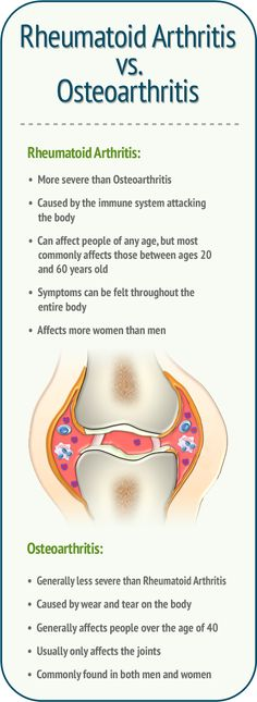Rheumatoid Arthritis vs. Osteoarthritis: Rheumatoid Arthritis: More severe than OA Caused by the immune system attacking the body Can affect people of any age, but most commonly affects those between ages 20 and 60 years old Symptoms can be felt throughout the entire body Affects more women than men Osteoarthritis: Generally less severe than RA Caused by wear and tear on the body Generally affects people over the age of 40 Usually only affects the joints Commonly found in both men and…