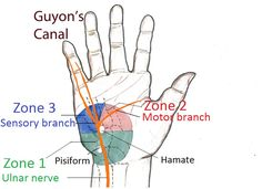 Guyon's canal borders, sensory and motor branches of the ulnar nerve in the canal, pictures Ulnar Nerve Entrapment, Peripheral Nerve, Natural Cure For Arthritis, Types Of Arthritis, Hand Anatomy, Human Body Anatomy, Tingling Hands, Upper Limb Anatomy, Numbness In Hands