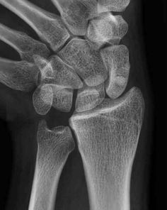 Negative Ulnar Variance- when the ulna heals shorter then it's original length causing the radius to impinge on the proximal carpal row during forearm rotation. Causes dorsal and radial wrist pain Wrist Anatomy, Wrist Pain, Hand Therapy, Bone And Joint, Radiology, Occupational Therapy, Chronic Illness, Healing, Medical