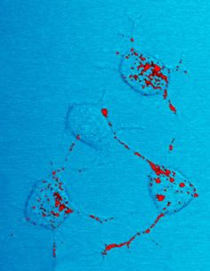 Prion protein, shown in red, can become infectious and cause neurodegenerative disease. Here four nerve cells in a mouse illustrate how infectious prion protein moves within cells along neurites – wire-like connections the nerve cells use for communicating with adjacent cells. Credit: NIAID